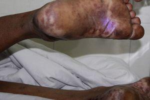 Không ăn tiết canh vẫn phải nhập viện vì nhiễm liên cầu lợn