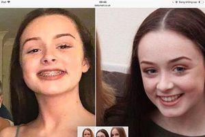 Cô gái suýt chết vì bị miếng kim loại từ niềng răng rơi vào tim