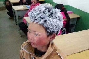 Mới chuyển trường, cậu bé 'tóc đóng băng' nổi tiếng đã bị buộc thôi học