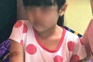 Bé gái nghi bị bạo hành ở Kiên Giang: Xin ý kiến từ Bộ Công an