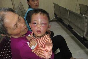 Bé trai 2 tuổi nghi bị cha dượng đánh đập dã man