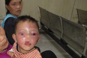 Bé 2 tuổi ở Nghệ An bị cha dượng bạo hành dã man