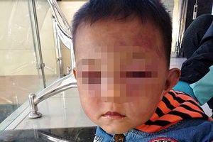 Xót xa bé hai tuổi bị cha dượng đánh tím mặt