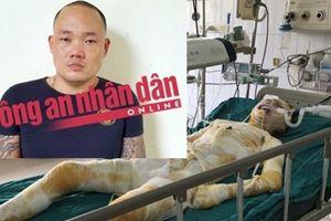 Bắt được hung thủ dùng xăng phóng hỏa 2 cô gái bị bỏng nặng