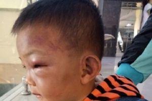 Chăm sóc, điều trị bé trai hai tuổi bị bạo hành ở Nghệ An