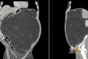 Mang khối u khổng lồ bao năm cứ ngỡ là bụng bia