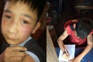Hà Nội: Phẫn nộ bố đẻ và mẹ kế dùng gậy gỗ, cán chổi đánh con trai bầm tím
