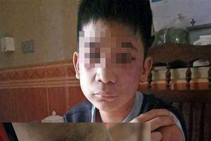 Hà Nội: Bé trai 14 tuổi bị bố và mẹ kế đánh bầm dập