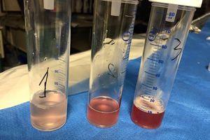 Hội chẩn nước ngoài chữa ca bệnh 9 năm ho ra máu