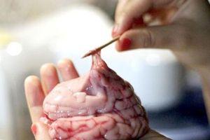 Cân nhắc kỹ trước khi ăn bộ phận này của lợn