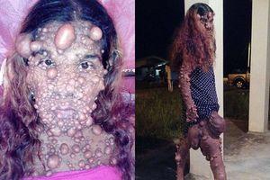 Mắc bệnh lạ, cô gái nổi u toàn thân bị dân làng xa lánh gọi là quái vật