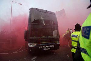 Liverpool thắng Man City nhờ trò bẩn trước trận?