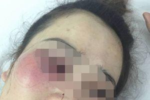 Nam thanh niên đánh cô gái trong quán bánh xèo: Cha lên facebook xin lỗi thay con