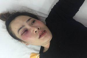 Cha của nam thanh niên đánh cô gái trong quán bánh xèo lên tiếng xin lỗi thay con