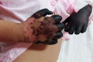 Xót thương bé gái bị hoại tử tứ chi do mắc bệnh hiếm gặp