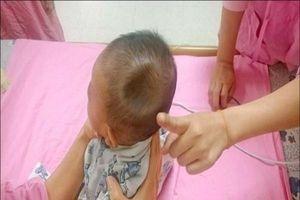 Chỉ vì sơ suất của bố mẹ khi đi xe, bé trai 4 tháng tuổi bị lõm sọ não như quả táo cắn dở