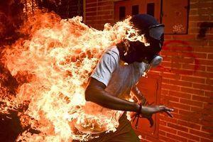 Ảnh người biểu tình Venezuela bốc cháy giành giải ảnh báo chí thế giới