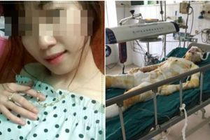 Cô gái bị bạn trai tẩm xăng thiêu sống ở Vĩnh Phúc đã tử vong