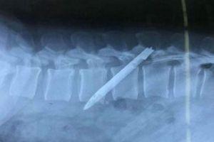 Lưỡi dao trong người chiến sĩ công an 11 năm sau lần bắt tội phạm