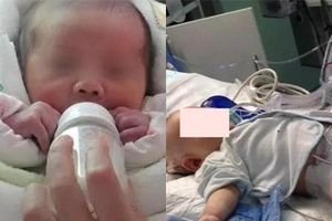 Uống sữa công thức đặc hơn tiêu chuẩn, bé sơ sinh 1 tháng phải... cắt ruột