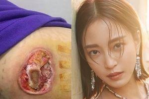 Sao Hàn 23/4: Shock nặng với vết thương lở loét của 'Mỹ nữ tái sinh' Han Ye Seul
