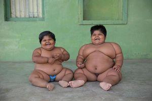 Hai chị em mới 8 tuổi đã nặng hơn 140kg phải cắt dạ dày vì khả năng ăn `siêu phàm`