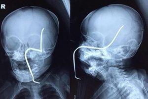 Máy cắt cỏ làm văng thanh sắt xuyên thủng sọ não bé gái 8 tháng tuổi