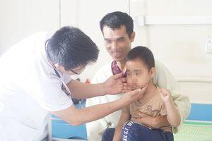 Dùng thuốc Corticoid quá liều, một trẻ nhỏ bị suy tuyến thượng thận