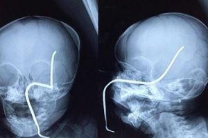 Bé gái 8 tháng tuổi bất ngờ bị thanh sắt đâm thủng sọ khi đang chơi đùa