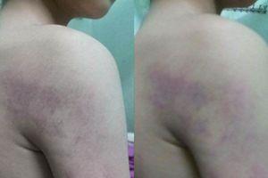 Vụ học sinh lớp 1 bị đánh bầm tím người: Lãnh đạo nhà trường lên tiếng