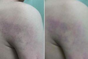 Phụ huynh tố cô giáo đánh bầm tím tay và vai học sinh