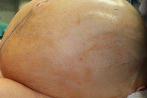 Phẫu thuật thành công cho người phụ nữ mang khối u khổng lồ, nặng tới 60kg