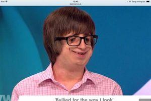 Chàng trai bị biến dạng mặt dũng cảm từ chối game show 'hẹn hò'