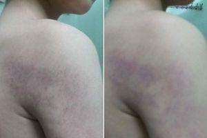 Đã có hình thức kỉ luật cô giáo đánh học sinh bầm tím người tại Hà Nội