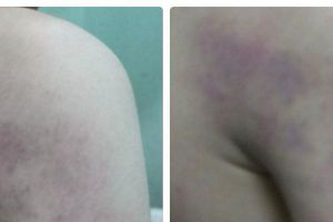 Hà Nội: Phạt cảnh cáo cô giáo đánh học sinh bầm tím người