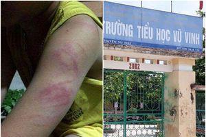 Đọc viết chưa thạo, học sinh lớp 1 bị cô giáo đánh bầm tím người