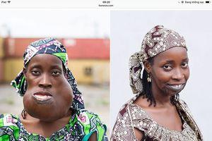 Người phụ nữ nở nụ cười sau 8 năm mang trên mặt khối u 'khủng'