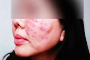 'Nghiện' làm đẹp để tiếp khách, nữ doanh nhân U50 bị bác sĩ 'rởm' tại thẩm mỹ viện tiêm corticoid biến chứng sưng vù toàn thân