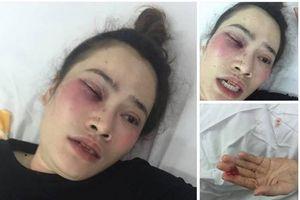 Vụ đánh người trong quán bánh xèo ở Đà Nẵng: Phạt hành chính 1,5 triệu đồng