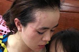Cán bộ hải quan bị tố xông vào nhà đánh vợ cũ