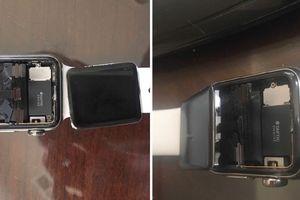 Apple bị kiện vì biết trước lỗi màn hình trên Apple Watch nhưng vẫn bán