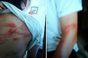 Vụ bố đẻ bị tố bạo hành con đẻ: Trẻ khai nhận bị bố đánh bằng gậy inox