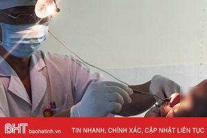 BVĐK Hương Khê: Gắp con đỉa dài 16 cm trong mũi bệnh nhân