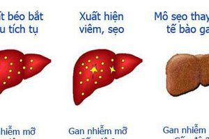 Top 4 nguyên nhân của bệnh gan nhiễm mỡ và những thực phẩm nên ăn để bảo vệ gan, phòng ngừa bệnh