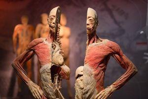 Bị từ chối cấp phép, tại sao triển lãm xác người vẫn diễn ra?