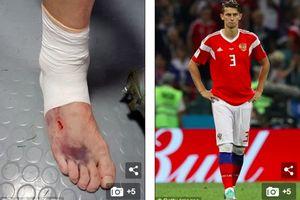 Hậu vệ Nga Ilya Kutepov bị chấn thương khủng khiếp trong trận gặp Croatia