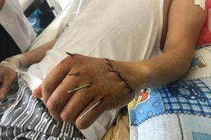 Những ca phẫu thuật ghép bàn tay kinh điển 'phù phép' bàn tay đứt rời thành lành