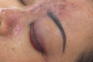 Thêm một nạn nhân tiêm filler bị mù mắt