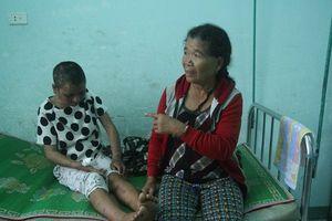 Phẫu thuật miễn phí cho nữ giúp việc bị tra tấn ở Gia Lai