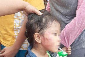 Cô giáo tát trẻ nứt xương hàm có bằng sư phạm Mầm non